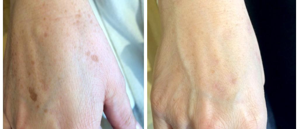 Spotreducer Ergebnis Hand | Regine Plochmann Kosmetik
