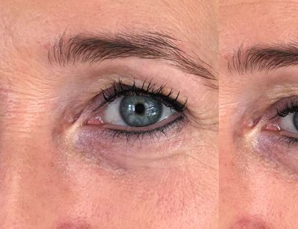 Permanent Make-up Weihnachten Plochmann Kosmetik Starnberg