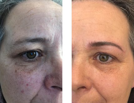 Raucherin Permanent-Make-up Haut Verbesserung