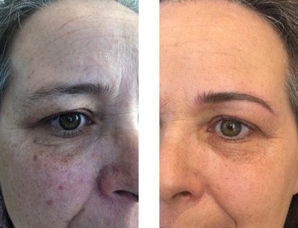 Raucherin Permanent-Make-up Haut Verbesserung